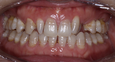 Teeth requiring white build up